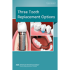 Small thumb w293 3 tooth replacement options ecatalog image 300x300